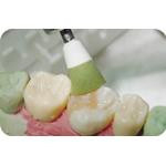Identoflex-Diamond-Ceramic-Polishers_01