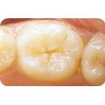C-I_Premise_Indirect_facial_dentin02