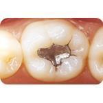 C-I_Premise_Indirect_facial_dentin01