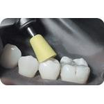 Identoflex_Composite_Polishers_clinical_image02