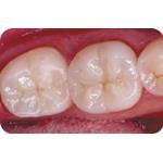 C-I_Premise_Indirect_facial_dentin04