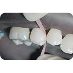 Hawe_Finishing_and_Polishing_Strips_Clinical_image02