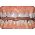 C-I_Premise_Indirect_facial_dentin09
