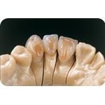 C-I_Premise_Indirect_facial_dentin07