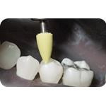 Identoflex_Composite_Polishers_clinical_image01