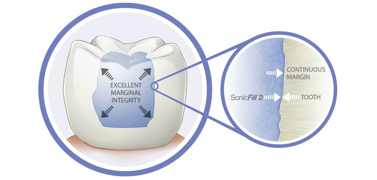 EN_sonicfill-2-excellent-marginal-integrity