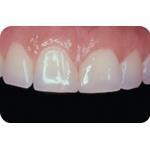 C-I_Premise_Indirect_facial_dentin06