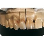 C-I_Premise_Indirect_facial_dentin08