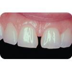 C-I_Premise_Indirect_facial_dentin05