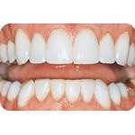 C-I_Premise_Indirect_facial_dentin10