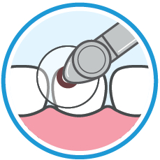 OptiDisc: Transparent Material