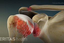 Shoulder Rheumatoid Arthritis