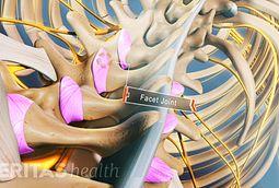 Anklyosing Spondylitis
