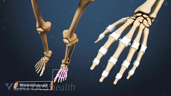 rheumatoid arthritis in the knee joints