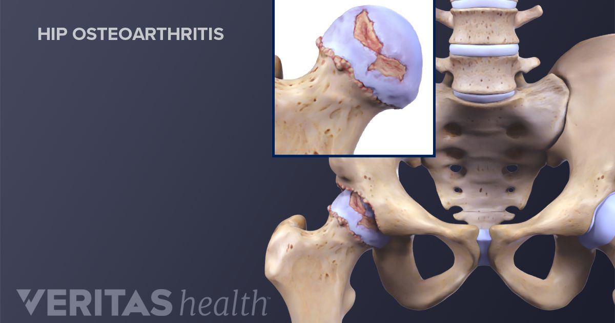 7 Core Exercises to Relieve Back and Hip Arthritis Pain