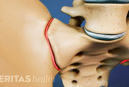 Sacroilliac Joint Pain