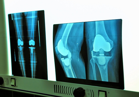 knee replacement x-rays