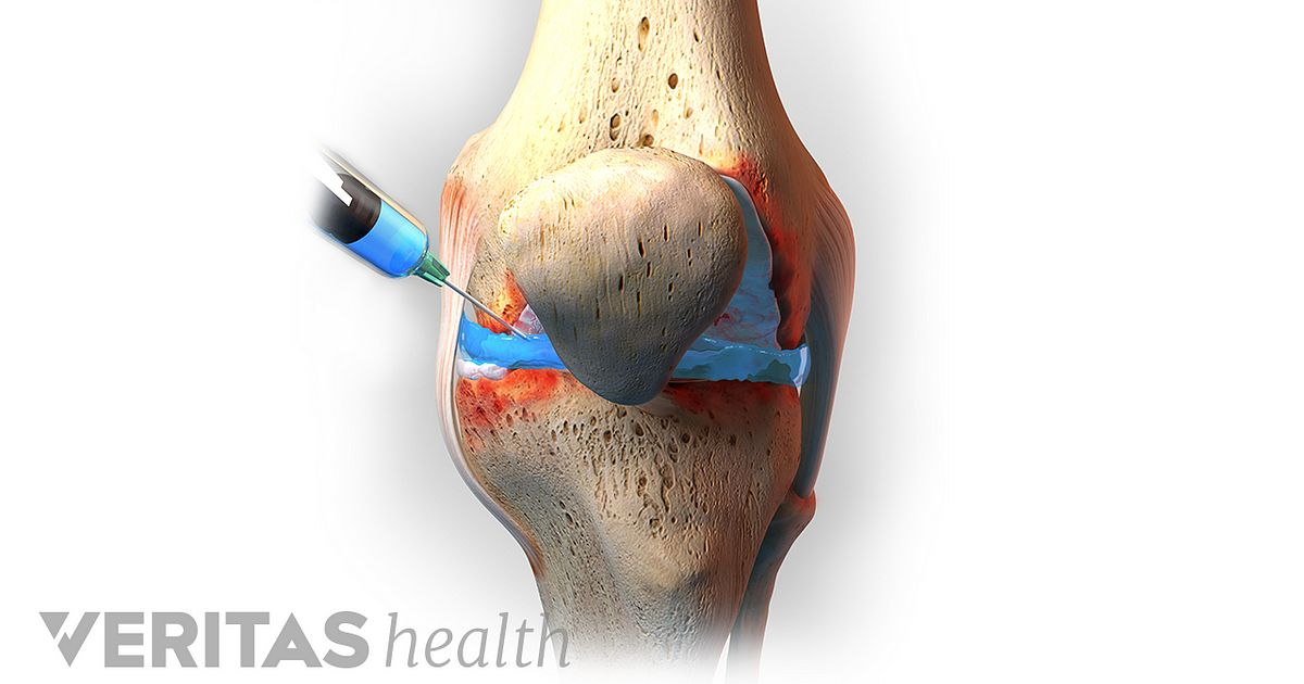 Viscosupplementation For Knee Osteoarthritis Arthritis