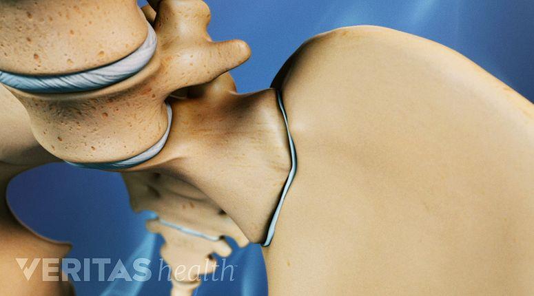 Sacroiliac Joint Dysfunction Si Joint Pain