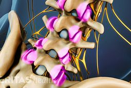 Spondylolysis