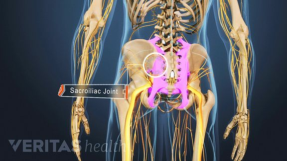 Ankylosing spondylitis and the SI joints.