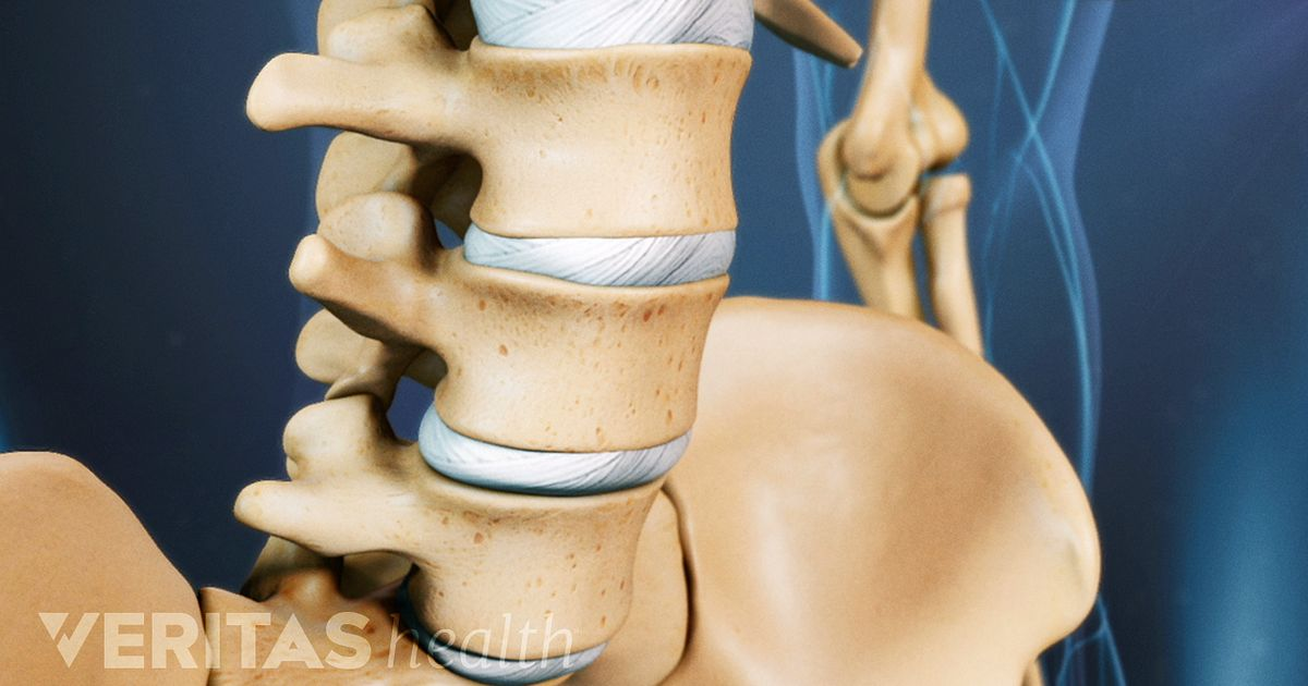 can a chiropractor help with spondylothesis Spondy, spondylo, spondylolisthesis, grade 1 grade 2 grade 3 grade 4 5 this is a great story about someone who would be unlikely to be a success within.