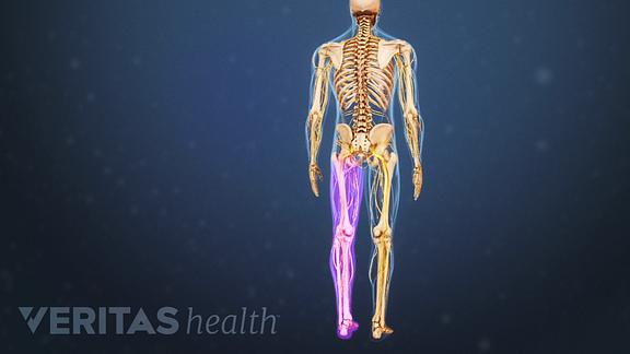 sciatica anatomy on one side of the body