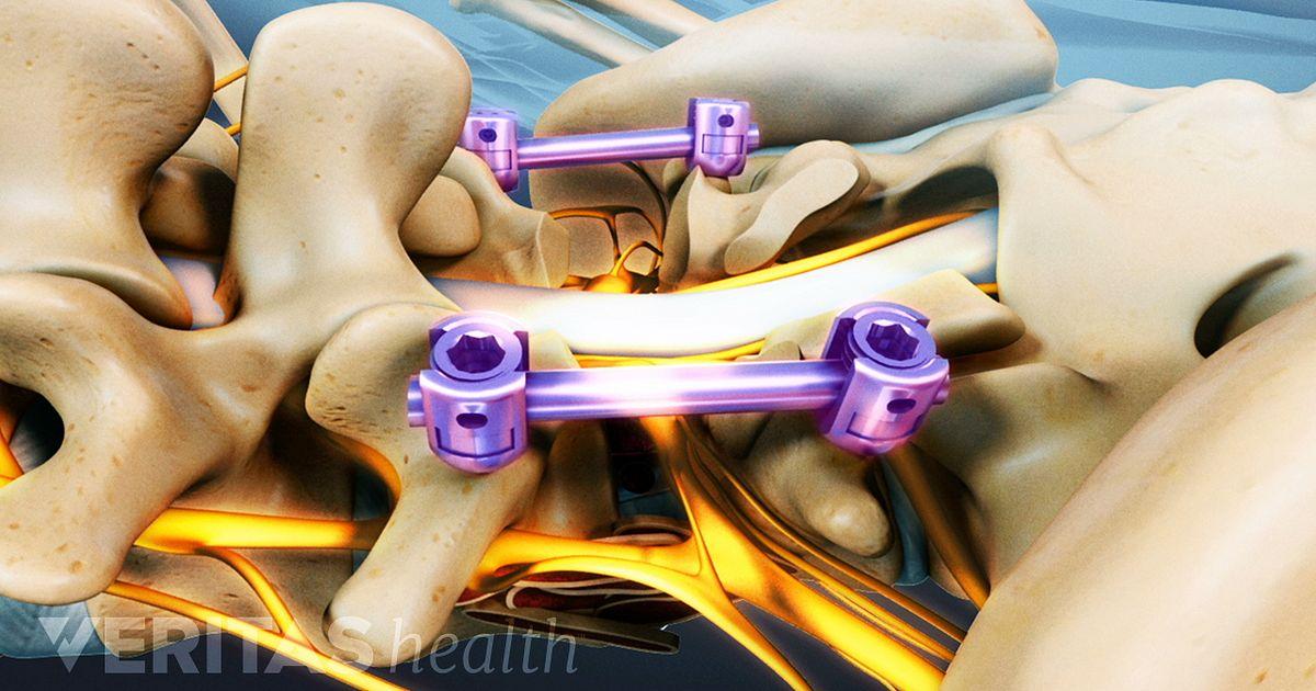 Listhesis Treatment
