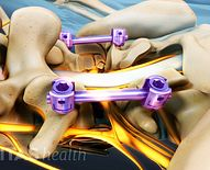 Scoliosis Surgery: Postoperative Care