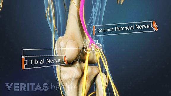 Tibial and peroneal nerves