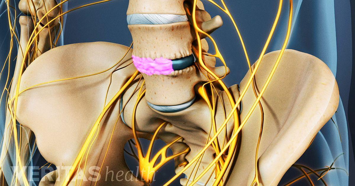Bone Graft For Spine Fusion
