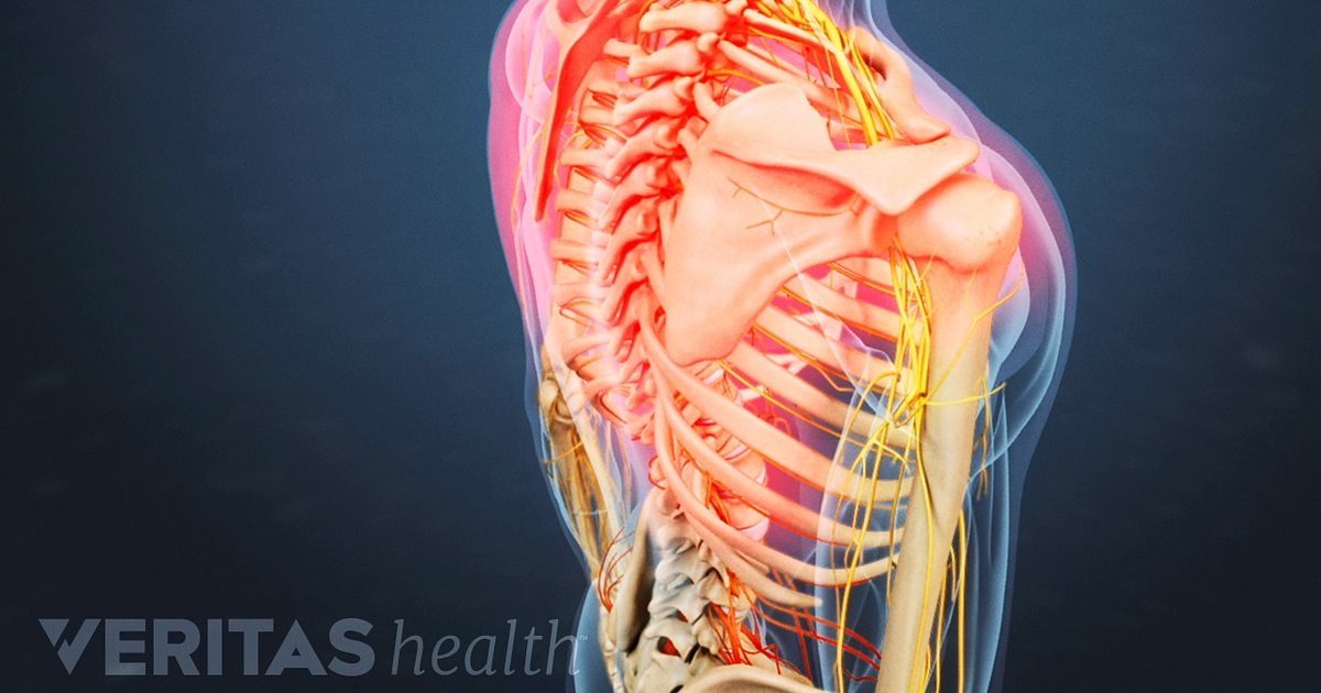 Upper Back Pain from a Thoracic Herniated Disc