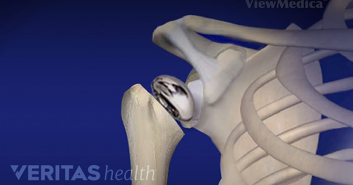 Shoulder Replacement Surgery Video Arthritis Health