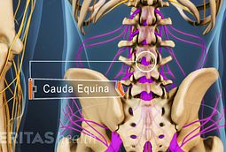 Sciatica Pain Medical Emergency