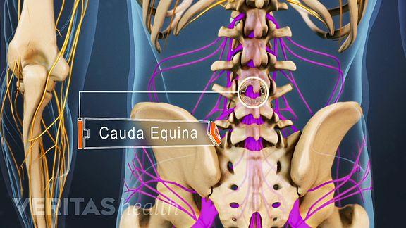 Cauda equina: MedlinePlus Medical Encyclopedia Image