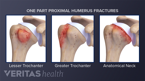 humeral head fracture