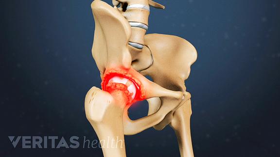 Hip Osteoarthritis video