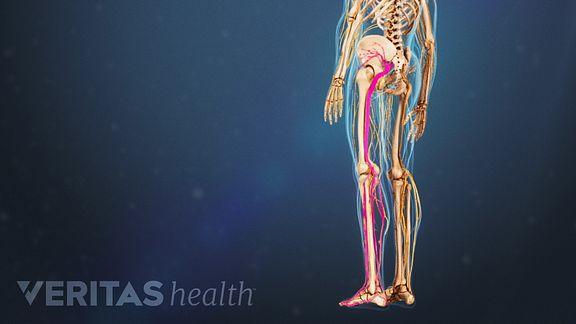 Illustration of Sciatic Nerve Pain