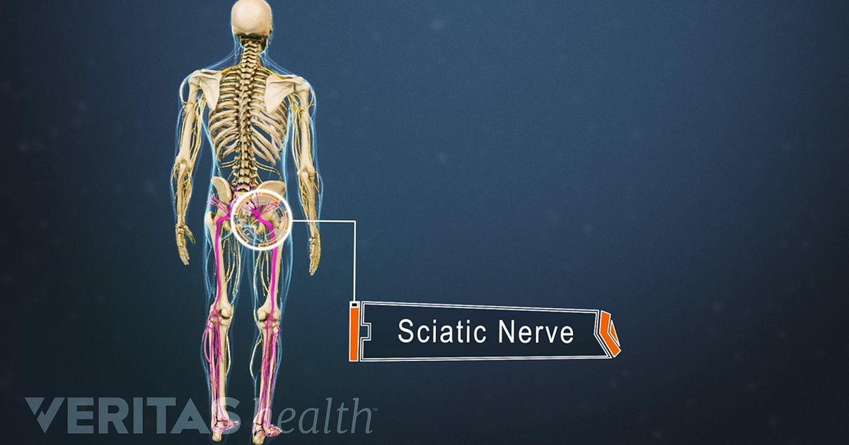 How To Apply Heat Therapy For Your Sciatica Symptoms