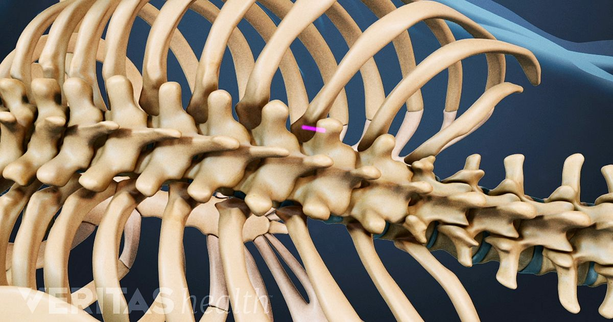 Kyphoplasty Osteoporosis Fracture Treatment Video