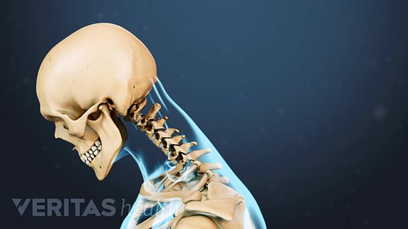 Neck Strains and Sprains Video