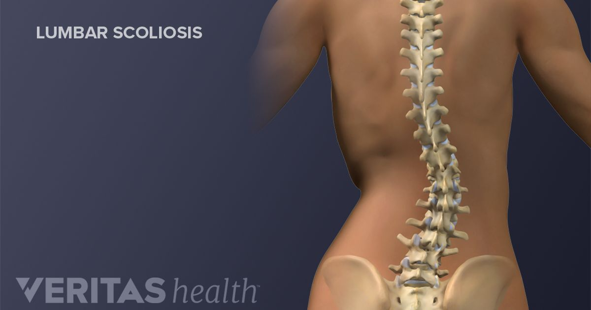 Adult scoliosis treatments osteoporosis
