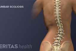 scoliosis treatment