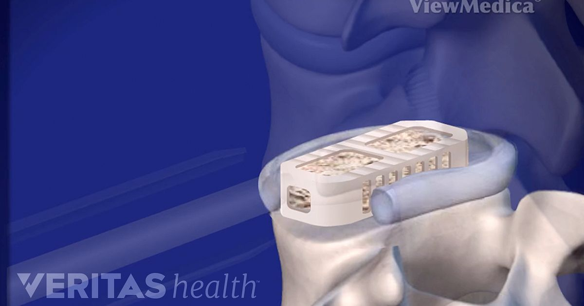 Lateral Lumbar Interbody Fusion Xlif Video