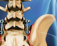 Spinal Fusion for Idiopathic Scoliosis