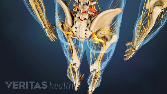 Is it sciatic pain or referred pain?