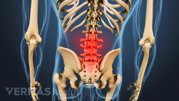 Lower Back Pain from Osteoarthritis
