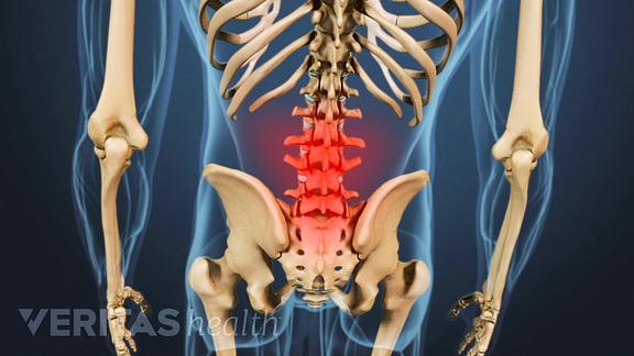 Symptoms of low back pain.