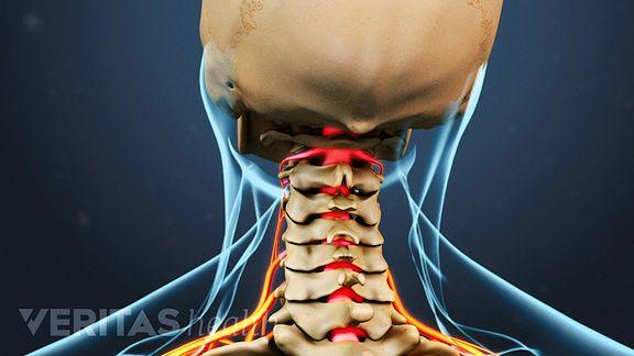 Cervical Radiculopathy Interactive Video