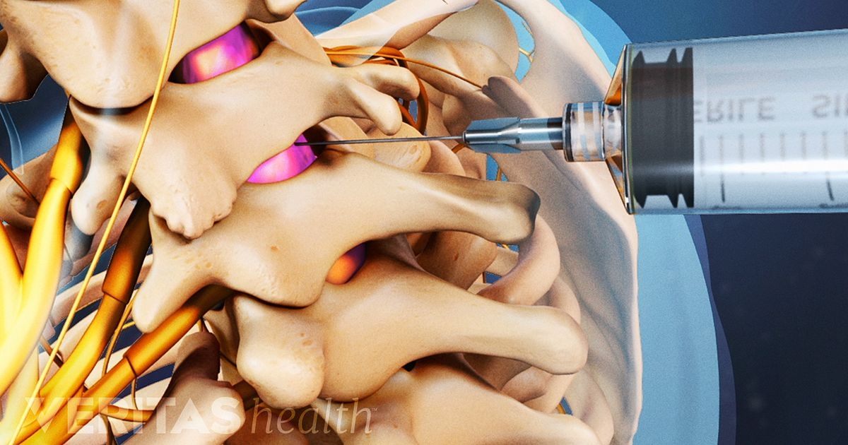 Cervical Epidural Steroid Injection Video
